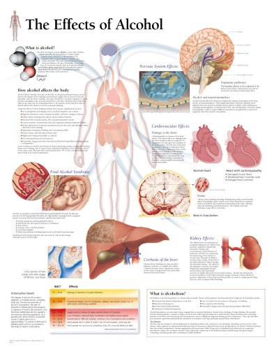 The Effects of Alcohol chart: Laminated Wall Chart
