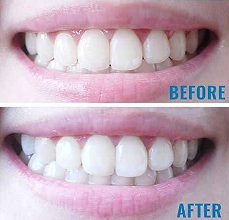 Crystal Whites X6 Platinum Teeth Whitening Kit With Led Lazer