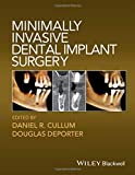 Best Dental Implants - Minimally Invasive Dental Implant Surgery Review