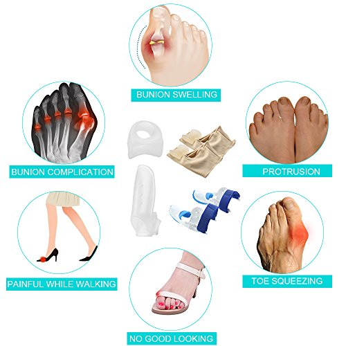 Bunion Corrector Splint Relief Kit - Orthopedic Bunion Pads Toe Separators Spacers Straighteners for Tailors Bunion Hallux Valgus Big Joint Hammer Toe Women and Men (4 Pairs) by INCOK (Image #7)