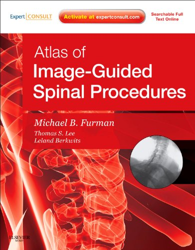 Atlas of Image-Guided Spinal ()