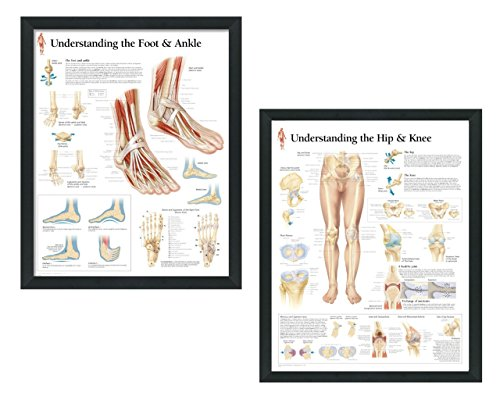 set of 2 framed medical posters understanding the hip and knee and