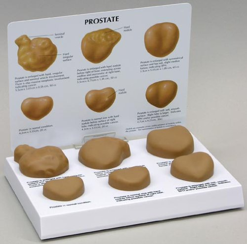 Prostate Progressive Disease Set of 6 Anatomical Models
