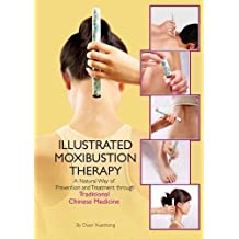 The Illustrated Moxibustion Therapy: A Natural Way of Prevention and Treatment through Traditional Chinese Medicine