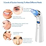 Blackhead Remover Blackhead Vacuum Microdermabrasion Machine Facial Pore Cleanser Blackhead Acne Removal Powerful Extractor With 4 Replaceable Suction Heads (white)