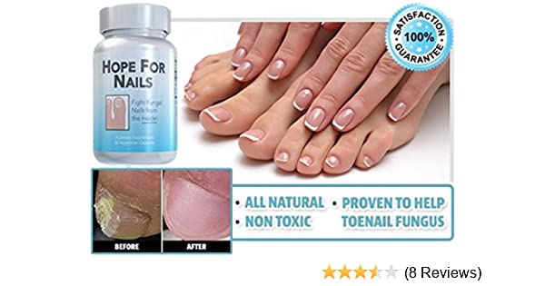 Amazon.com: Hope For Nails Supplement for Nail Fungus: Health ...