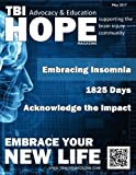TBI HOPE Magazine - May 2017