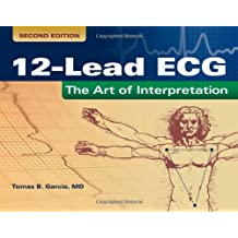 12-Lead Ecg: The Art Of Interpretation