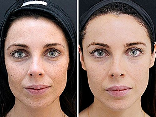 Kiss Dark Circles  Eye Bags Goodbye Organys Anti Aging -8195