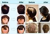Brahmi Amla Hair Oil (8 oz) by Vadik Herbs
