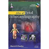 Atlas Of Fetal Echocardiography