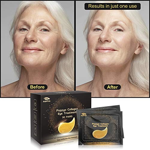51YqUjsxelL - Under Eye Patches, POPPYO 24K Gold Eye Treatment Mask, Collagen Eye Mask, with Anti-aging and Wrinkle Care Properties, Reducing Dark Circles Puffiness Undereye Bags(30 Pairs)