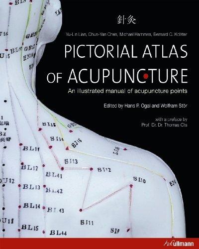 Pictorial Atlas of Acupuncture (Ullmann) by Yu-Lin Lian, Chun-Yan Chen, Michael Hammes, Bernard C. Kolst (1/10/2012)