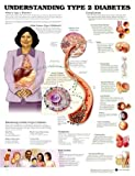 Understanding Type 2 Diabetes Anatomical Chart, Anatomical Chart Company Staff, 1587795485