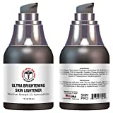 hyperpigmentation Medical Grade Hydroquinone Rapid Skin Lightener | Maximum Strength Dark Spot Corrector and Melasma Treatment | Ultra Brightening Formula by SkinPro Skin Care Science