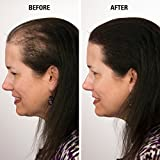 Eclipse Hair Fibers for Thinning Hair