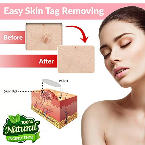 Skin Tag and Acne Remover Patches 72 Pcs , Natrual Ingredients Medicated Patches,Pimple Dries and Falls away, Covers and Conceals Skin Tags and Pimple, New and Improved Formulation Acne Remover