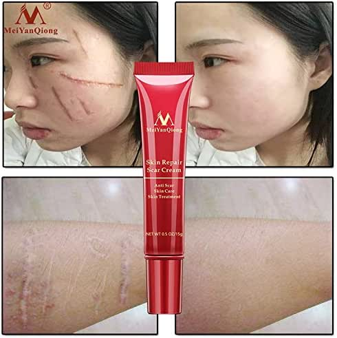 Birdfly 15 g Pregnancy Tattoo Scar Acne Mark Removal Freckle Repair Cream