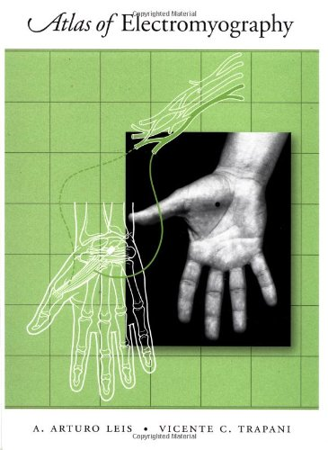 Atlas of Electromyography - http://medicalbooks.filipinodoctors.org