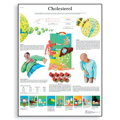 3B Scientific VR1452UU Glossy Paper Cholesterol Anatomical Chart, Poster Size 20-Inch Widthx26-Inch Height