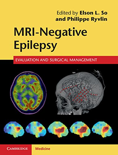 Download MRI-Negative Epilepsy: Evaluation and Surgical Management Pdf