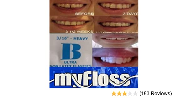 Amazon orthodontic gap teeth bands 316 heavyfloss 1 pack of amazon orthodontic gap teeth bands 316 heavyfloss 1 pack of 100 beauty solutioingenieria Choice Image
