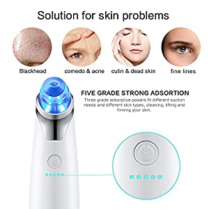 Yimaler Blackhead Removal Pore Vacuum Extractor Machine Facial Pore Cleanser The Upgraded Version Of Red Light And Blue Light Will Help Shrink Pores and Remove Acne Marks USB Rechargeable(White)