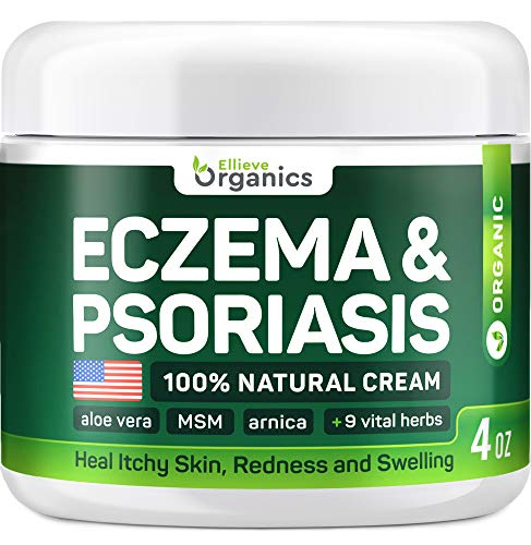 Eczema Cream - Made in USA - Provides Intensive Psoriasis Treatment and Eczema Relief with Aloe Vera, Collagen, MSM, Arnica & More - Effective for Stubborn Conditions and Prevention - 4 OZ