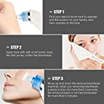 Blackhead Remover, Imbeang Blackhead Vacuum Suction Remover Electric Facial Pore Cleanser with Microcrystalline Head Electric Skin Cleaner Blackhead Extraction Tool,1 Set of 4 Tips