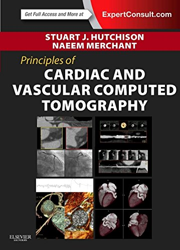 Principles of Cardiac and Vascular Computed Tomography, 1e (Principles of Cardiovascular Imaging)