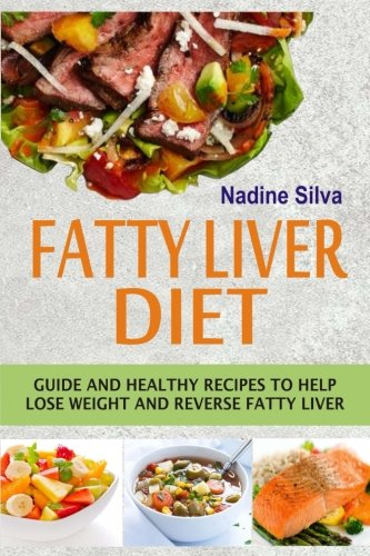 Fatty Liver Diet: Guide And Healthy Recipes To Help Lose Weight And Reverse Fatty Liver