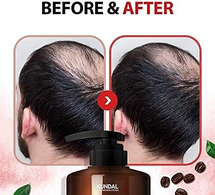 Amazon Com Kundal Anti Hair Loss Caffein Scalp Care Deep Cleansing For Hair Loss Baby Powder Shampoo 500ml Beauty
