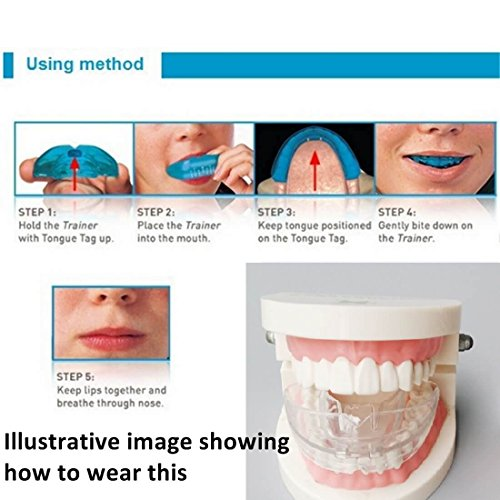 High-tech Dental Orthodontic Braces - Transparent Soft and Hard - For Adults Teeth Straightening by Cool & Fresh (Image #4)