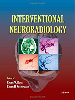 Neurointerventional Management: Diagnosis and Treatment, Second Edition