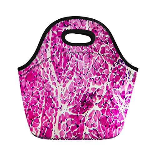 Semtomn Lunch Bags Biology Science Cross Section of Skeletal Muscle Under Microscope Neoprene Lunch Bag Lunchbox Tote Bag Portable Picnic Bag Cooler Bag