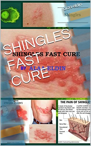 SHINGLES FAST CURE (Best Treatment For Herpes Zoster)
