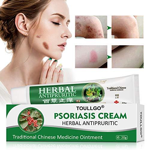 Psoriasis Cream, Psoriasis Treatment, Seborrheic Dermatitis Cream, Chinese Herbal Ointment for Psoriasis, Dermatitis, Eczema and Pruritus, 20g (Best Otc Psoriasis Treatment)