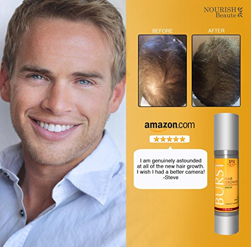 nourish beaute hair loss treatment and growth serum