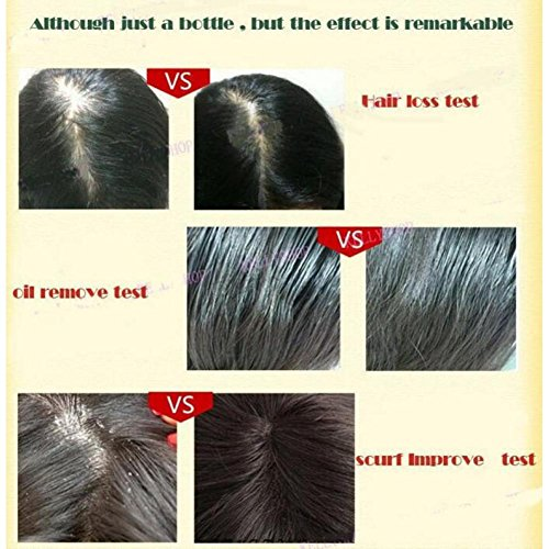 gstone 1pieza pérdida de pelo natural 1pieza productos con sin efectos secundarios crecer pelo más rápido del crecimiento del pelo cabello saludable ...