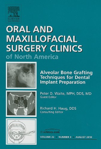 Alveolar Bone Grafting Techniques for Dental Implant Preparation, An Issue of Oral and Maxillofacial Surgery Clinics, 1e (The Clinics: - Alveolar Bone