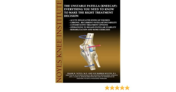 ea6391c27d The Unstable Patella (Kneecap): Everything You Need to Know to Make the  Right Treatment Decision - Kindle edition by Dr. Frank Noyes MD, Sue  Barber-Westin ...