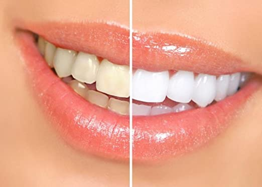 Best Teeth Whitening Home Kits