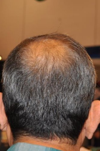 Best Hair Loss Conditioner to prevent and cure hair loss in men and women. Natural, organic product creates anti-hair loss treatment with amazing results. Stop hair loss by preventing DHT the main cause of alopecia. Guaranteed.