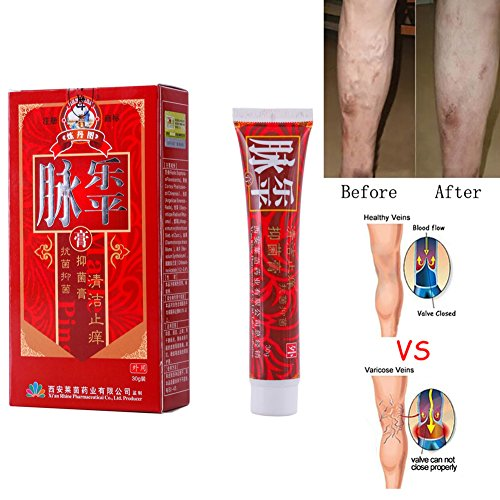 Ofanyia Veins Cream Varicose Veins Treatment Cream Relief Phlebitis Angiitis Inflammation Blood Vessel Health Skin Care