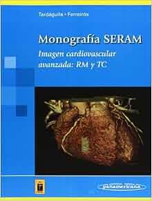 Imagen Cardiovascular Avanzada: Rm Y Tc (Spanish Edition): Seram