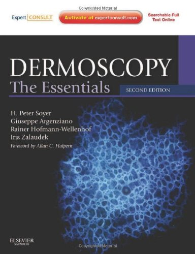 Dermoscopy: The Essentials: Expert Consult - Online and Print, 2e