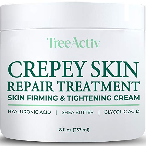 TreeActiv Crepey Skin Repair Treatment | Skin Firming & Tightening Lotion for Neck, Arms, Chest, Legs | Anti-Aging & Anti-Wrinkle Honey Cream | Hyaluronic Acid Stretch Marks Remover | 8 fl oz (237 ml)