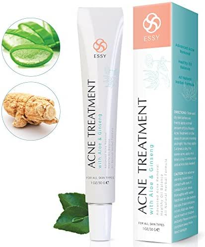 Acne Cream with Aloe and Ginseng - Advanced Acne Removal Healthy Oil Balance With Natural Herbal Formula 1 oz