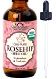 Rosehip Oil Hyperpigmentation Acne US Organic Rosehip Seed Oil, USDA Certified Organic, Amber Glass Bottle and Glass Eye Dropper for Easy Application - 60 ml