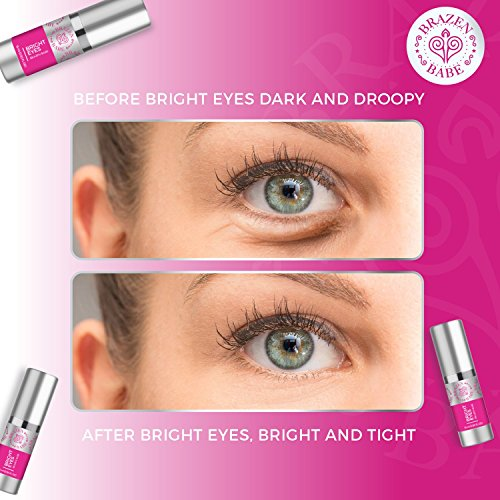 Eye Cream,''Bright Eyes'' by Brazen Babe- Eliminates Dark Circles, Puffiness, Fine Lines & Wrinkles-Scientifically Proven, Natural Moisturizing Treatment Brightens and Tightens by Brazen Babe (Image #3)